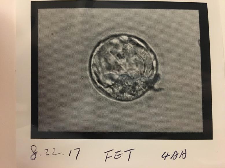 Embryo #3